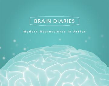 Brain Diaries exhibition poster